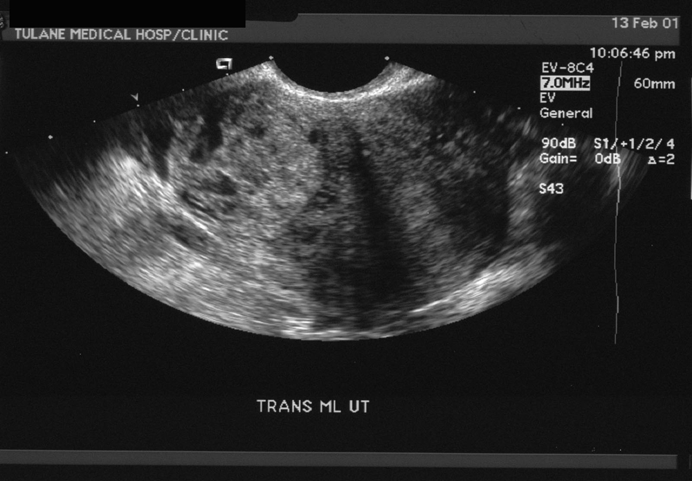 US-Ectopic-Pregnancy-2
