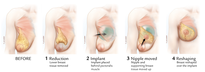 BAR procedure for Dr. Caridi; Westlake Plastic Surgery