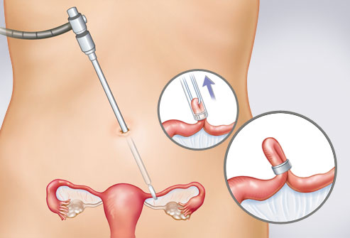 webmd_rf_illustration_of_tubal_ligation_surgery