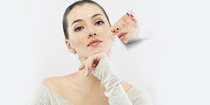 Acne-scar-removal (1)