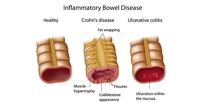 Crohn's-disease-vs-Ulcerative-colitis