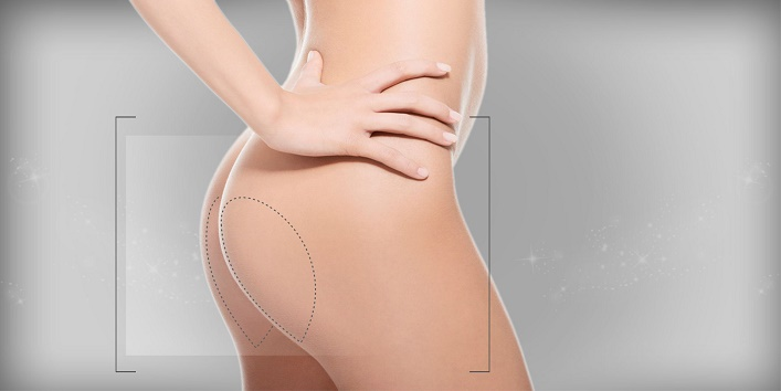 Gluteal implant