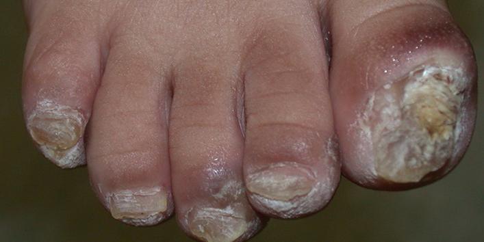 Nail-Patella-Syndrome