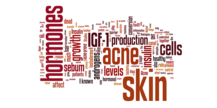 What-increases-your-risk-to-get-an-acne