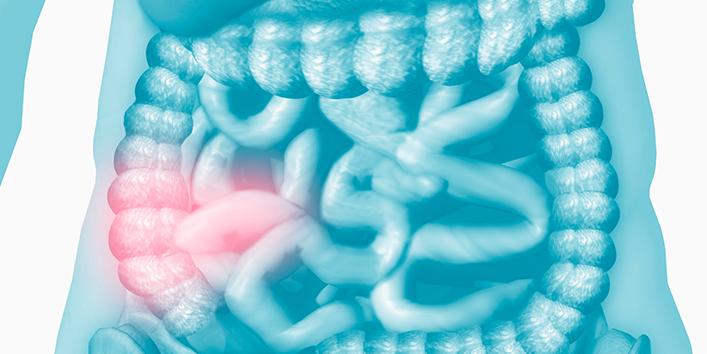 What-is-Crohn's-Disease