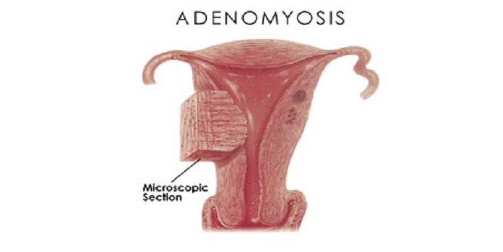 adenomyosis1