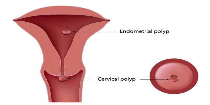 cervical poplys