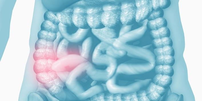 Crohn's Disease1