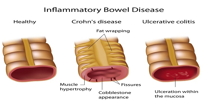 the causes and symptoms of crohns disease The cause for crohn's disease was unknown until recent a professor in london has recently linked the bacteria map (mycobacterium avium patrauberculosis.